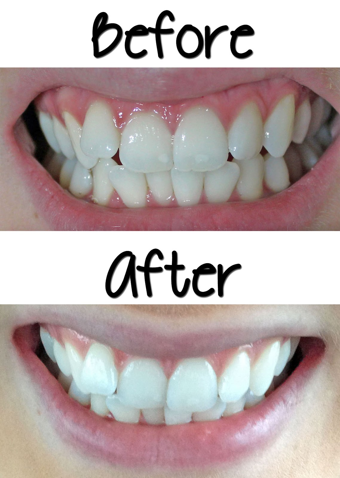 Video Affordable Effective Teeth Whitening Smile Bright Review